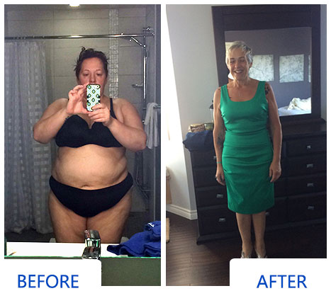 Holly Before and After Weight Loss Surgery Photo