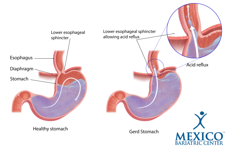 Acid Reflux and Gastric Sleeve