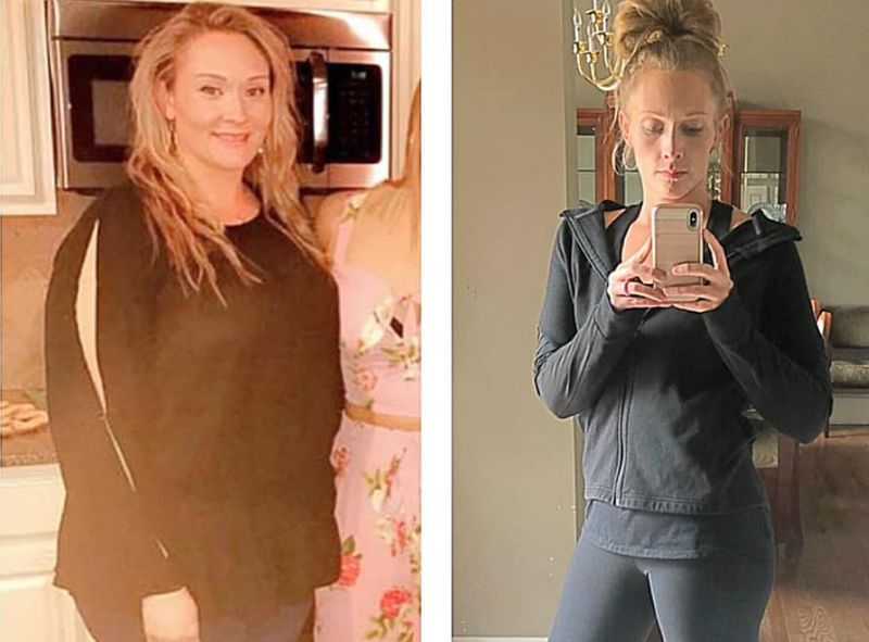 Kalyn - Before and After Mexico Bariatric Center Canada